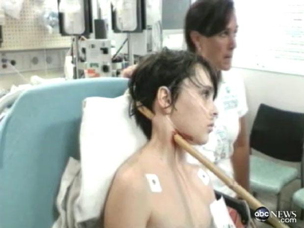 O garoto Dez Heal, de 13 anos, com a vara de bambu atravessada em seu pescoço. Dez sobreviveu ao acidente após cinco horas de cirurgia. (Foto: Reprodução/ABC)