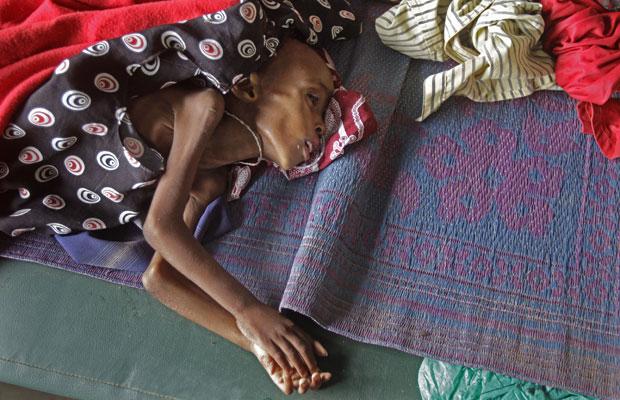 Criança espera tratamento em hospital dos Médicos Sem Fronteiras no campo de Dadaab, no Quênia (Foto: Schalk van Zuydam/AP)