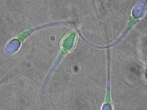 Imagem de espermatozóides com o defeito genético (Foto: Ted Tollner/UC Davis)