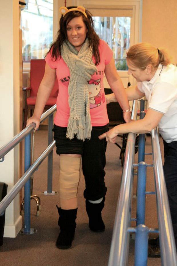 Chanel Carter teve um tumor benigno na perna direita. (Foto: Caters)