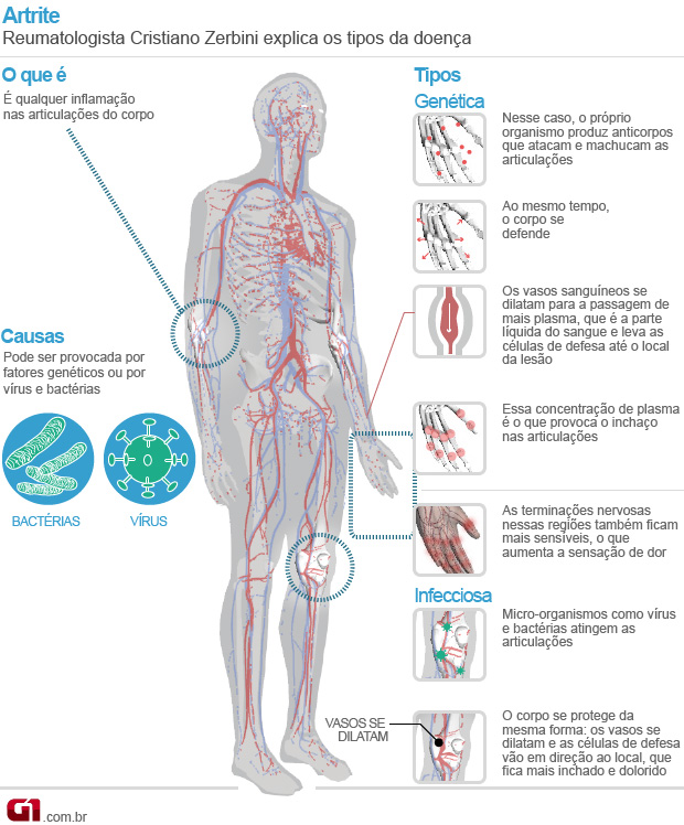 artrite (Foto: Arte/G1)