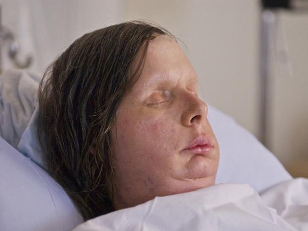 Charla Nash, de 57 anos, logo após a cirurgia que reconstruiu o seu rosto. (Foto: Hospital Brigham and Women's / AP Photo)
