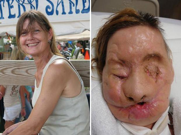 Charla Nash, antes e depois do ataque do chimpanzé Travis. (Foto: Hospital Brigham and Women's / AP Photo)
