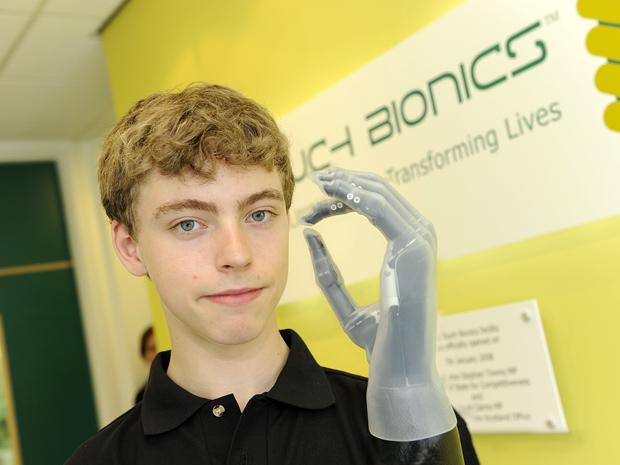 Matthew James exibe a mão biônica que ganhou de presente (Foto: Touch Bionics)