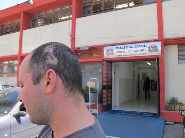 Arquiteto precisou levar sete pontos na cabeça após agressões (Foto: Juliana Cardilli/G1)