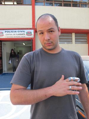 Bruno também quebrou o dedo ao ser agredido (Foto: Juliana Cardilli/G1)