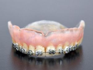 Secretária diz que dentadura estilizada até mudou sua aparência (Foto: Leandro Abreu/ G1 MS)