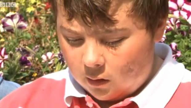 O garoto Patrick Flinders (Foto: BBC)