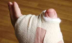 Britânico tem dedão do pé implantado no lugar de polegar (Foto: PA)