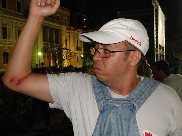 Professor Flávio Martins ficou ferido no braçço durante o confronto (Foto: Pedro Triginelli/G1)