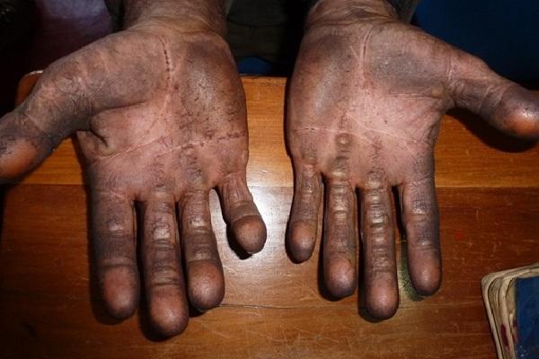 Mãos  feridas e calos decorrentes do trabalho sem o uso de equipamentos necessários. (Foto: Divulgação/SRTE-GO)