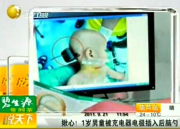 Bebê passou por cirurgia após cravar carregador de celular na cabeça. (Foto: Reprodução)