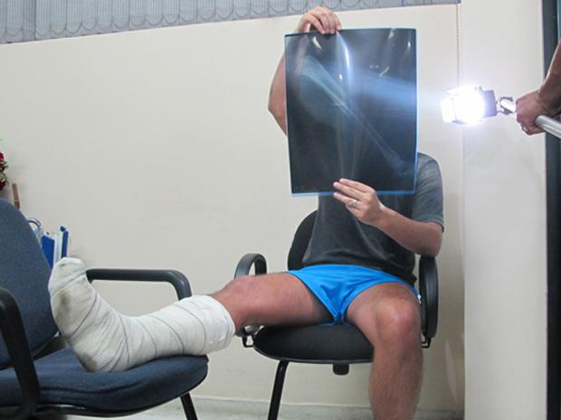 Vítima mostra exame de fratura na perna  (Foto: Roney Domingos/ G1 )