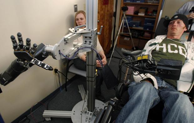Tim Hemmes controla a mão artificial por meio de um chip implantado no seu cérebro. (Foto: Keith Srakocic / AP Photo)