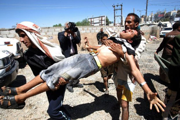 Jovem ferido é socorrido em Sanaa (Foto: AFP)