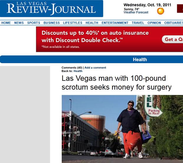 Wesley Warren Jr., de 47 anos, desenvolveu a rara condição nos últimos três anos (Foto: Reprodução/Las Vegas Review-Journal)