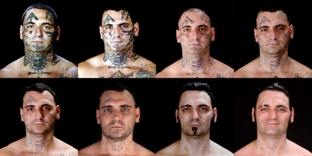 Evolução das cirurgias que removeram as tatuagens na face de Bryon Widner (Foto: AP/Duke Tribble/cortesia da MSNBC e da Bill Brummel Productions)