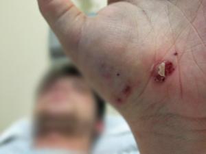 Rapaz de 21 anos agredido na Rua Augusta (Foto: Marcelo Mora/G1)