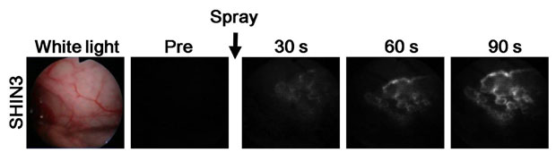 Modelo mostra que o tumor se torna claramente visível depois de um minuto e meio (Foto: Hisataka Kobayashi/cortesia)
