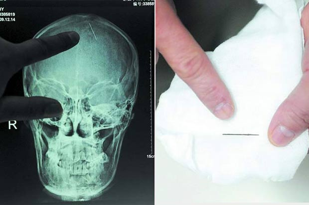 Em 2010, médicos retiraram uma agulha de 2,5 centímetros que estava há 20 anos encravada na cabeça da chinesa Zhou Chaozheng. Ela passou por exames após começar a sentir dores de cabeça depois de dar à luz. (Foto: Barcroft Media/Getty Images)
