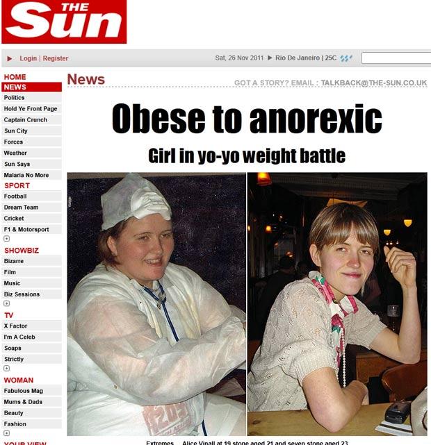 Alice Vinall passou de 120 quilos para 44,5 quilos. (Foto: Reprodução/The Sun)