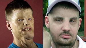 Mitch Hunter, antes e depois da cirurgia que reconstruiu sua face, destruída após uma descarga elétrica. (Foto: BBC)