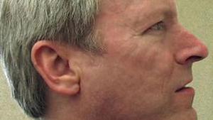 Brad Williams, um dos portadores da síndrome HSAM. (Foto: BBC)