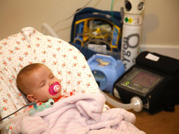 A pequena Jovi Wyse precisa da ajuda de aparelhos para respirar enquanto dorme (Foto: Caters News)