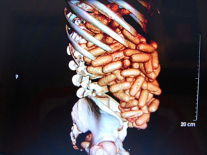 Tomographic image of Englishman arrested at Congonhas airport Friday 02 December 2011 in Sao Paulo with 89 capules containing 2.5 kg of pure cocaine in digestive tract.