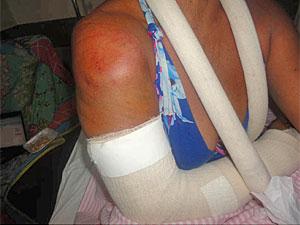 Mulher é atacada por jumento em Paulista (PE) (Foto: Divulgação/Arquivo pessoal)