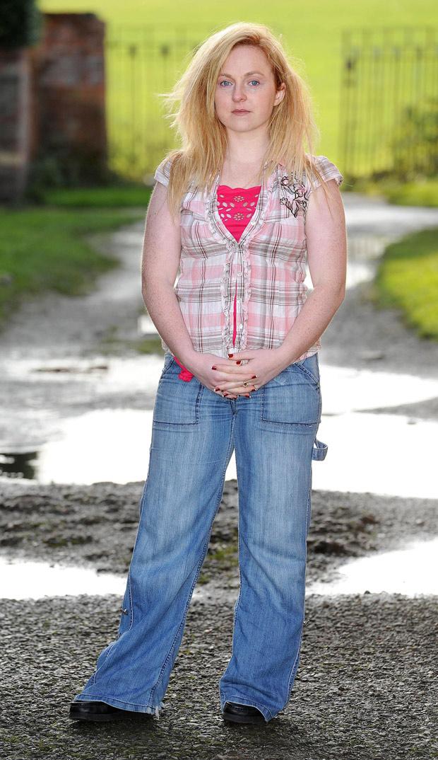 Katie Dell, hoje com 26 anos, tem uma alergia a água que só piora com o passar dos anos. (Foto: Caters News)