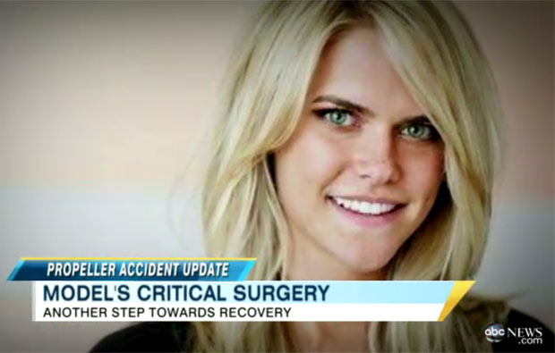 Após ter uma mão decepada no acidente, Lauren Scruggs teve o olho esquerdo removido (Foto: Reprodução/ABC News)