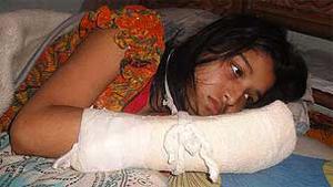 Hawa Akhter teve cinco dedos da mão direita cortados pelo marido. (Foto: BBC)
