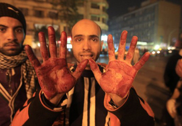 Manifestante mostra as mãos sujas de sangue após manifestações que deixaram dois mortos no Cairo (Foto: Mohammed Abed / AFP)
