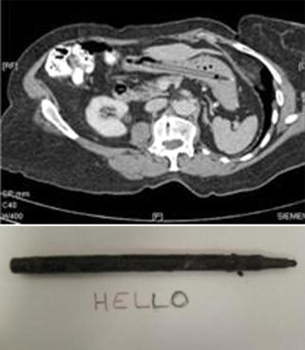 Na imagem de cima, tomografia em que a caneta aparece dentro do estômago da paciente. Abaixo, a demonstração de que o objeto ainda funcionava. (Foto: Reprodução)