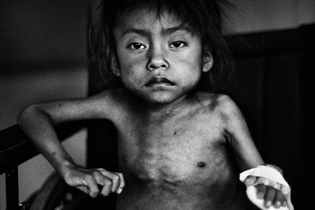 A segunda colocada no concurso é uma imagem de uma das cerca de 1 milhão de crianças desnutridas na Guatemala. A menina Marisela tinha 6 anos e meio à época da foto, e pesava apenas 9 kg. (Foto: JM Lopez/Unicef Photo of the Year 2011)