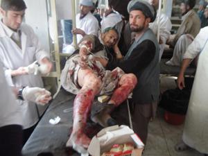 Homem ferido chega a hospital após ataque suicida na província de Takhar. (Foto: Zalmay Ashna / AP Photo)