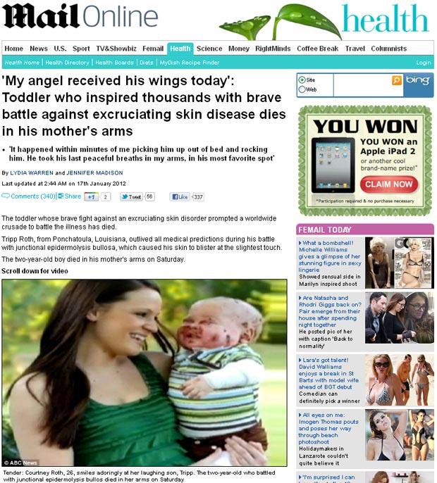 Tripp Roth nasceu com uma doença chamada epidermólise bolhosa (Foto: Reprodução/Daily Mail)