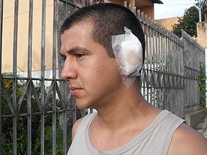 Soldado teve parte da orelha arrancada por advogado (Foto: Cleber Corrêa)