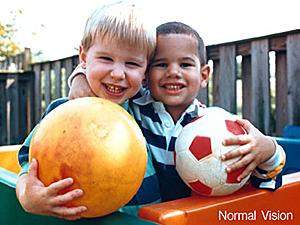 Visão normal (Foto: Instituto Nacional de Saúde dos EUA/Divulgação)