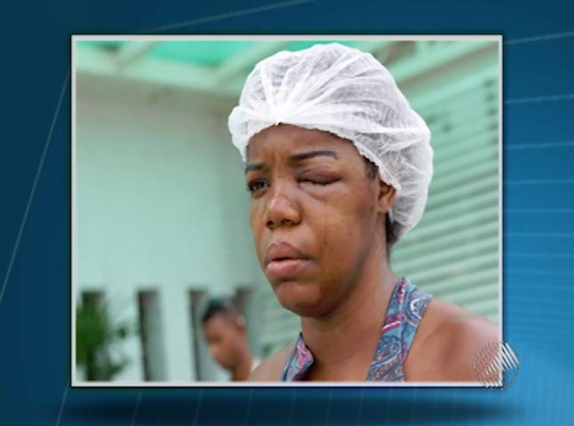 Mulher diz que foi agredida por policial (Foto: Reprodução/ TV Bahia)