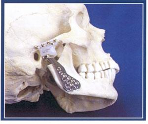Aparelho corrige erro na mandíbula (Foto: King's College/BBC)