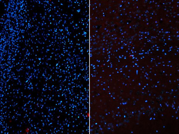 À esquerda, o córtex cerebral de camundongos medicados durante três dias com bexaroteno. À direita, roedores que receberam a droga por duas semanas. Os pontos azuis marcam a presença de fragmentos de proteína que provocam o Alzheimer. (Foto: Copyright Science / AAAS)