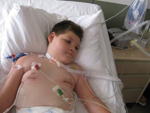Pedro após cirurgia que impantou marca-passo para estimular músculo responsável pela respiração. (Foto: Divulgação/Instituto Pedro Arthur)