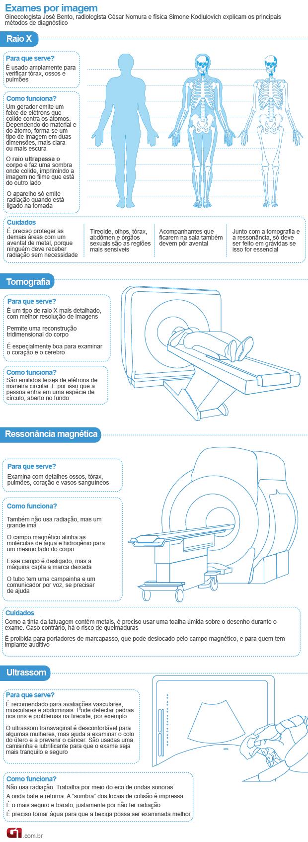 Exames médicos raio X (Foto: Arte/G1)
