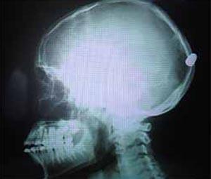 Exame revela bala alojada no crânio de adolescente em Ribeirão Preto (Foto: Divulgação)