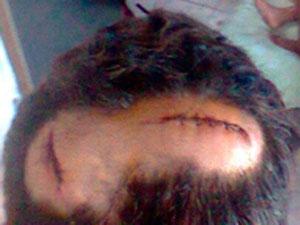 Vítima recebeu dez pontos na cabeça, após agressão. (Foto: Arquivo Pessoal)