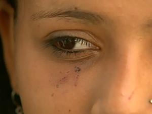 Adolescente de 13 anos agredida em escola de Ribeirão Preto, SP (Foto: Reprodução/EPTV)