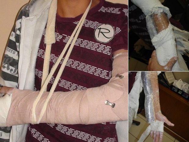 Adolescente é apreendido com crack em gesso do braço  (Foto: Divulgação/ Polícia Rodoviária Estadual)