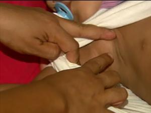Mãe aponta pelos em menino de 2 anos que recebeu superdosagem em Santa Cruz da Esperança, SP (Foto: Reprodução/EPTV)